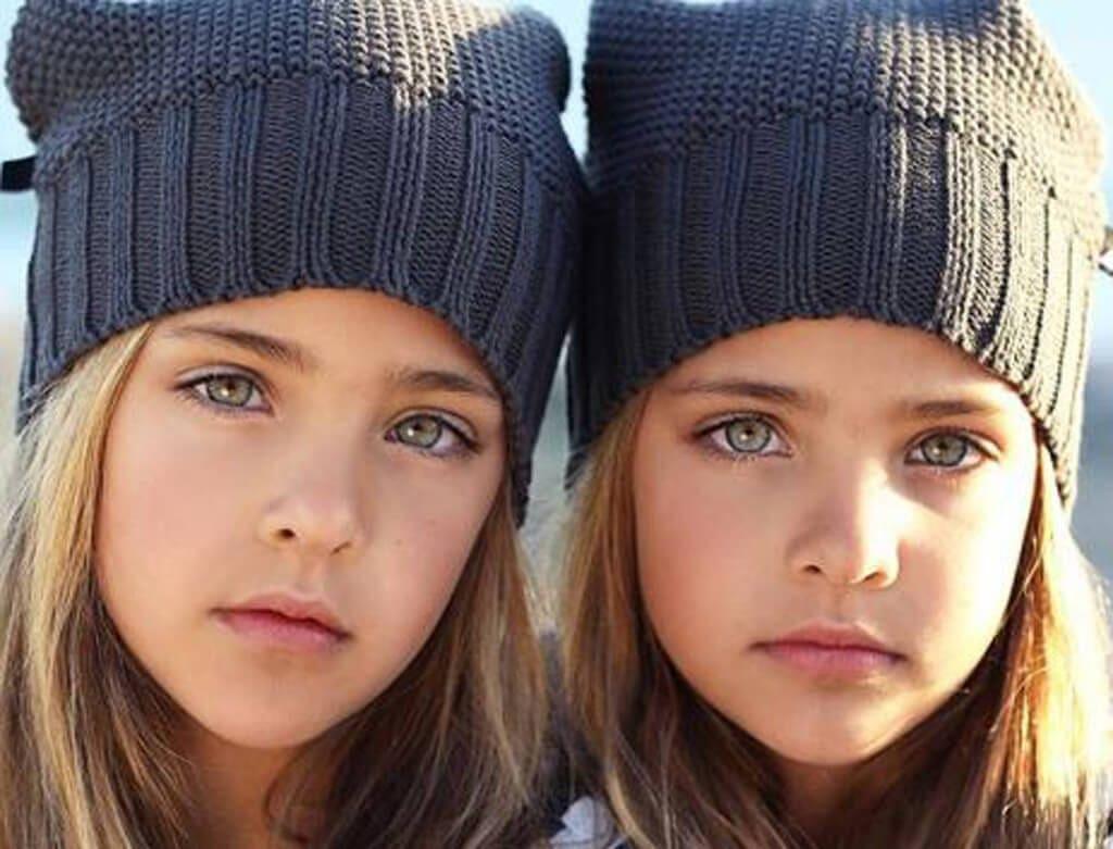 gemelos 31
